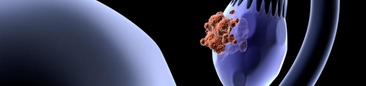 L'Obamacare a été un nouveau souffle pour la lutte contre le cancer des ovaires aux États-Unis