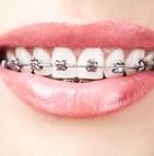 Mutuelle prothèse dentaire bridge couronne implant dentaire