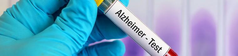 La détection de protéines bêta amyloïdes dans le sang n'induit pas forcément l'apparition de l'Alzheimer