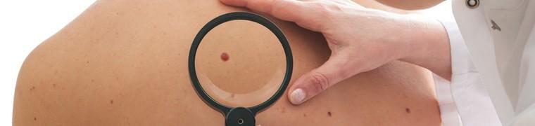 Les symptômes cancérigènes de la peau frappe une grande majorité des Britanniques